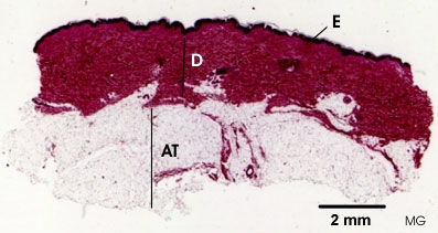 elastic-tissue-human-skin.jpg