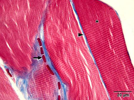 Poikkijuovainen Lihas