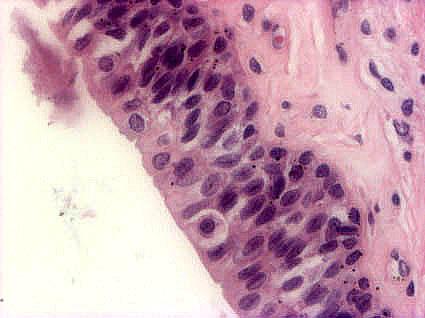 Sytoplasma