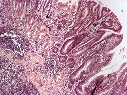 twaalfvingerige darm kanker