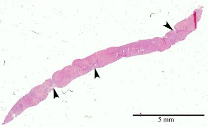 Maksabiopsia