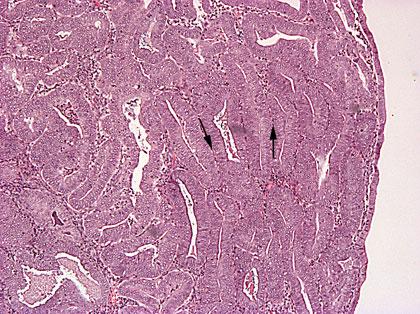 Kohdun Limakalvon Hyperplasia