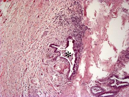 Granulomatoottinen Tulehdus