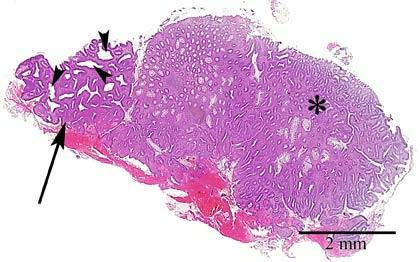 Tubulaarinen