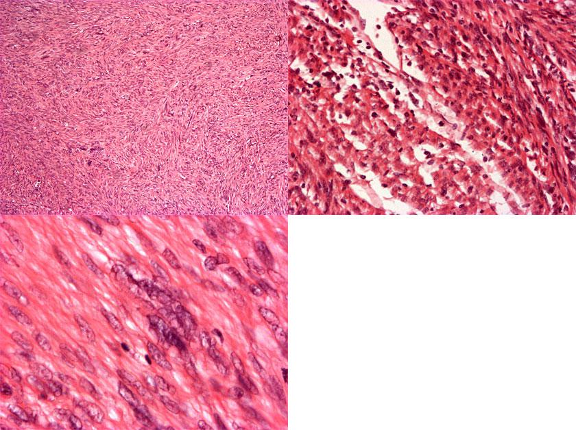 Leiomyosarkooma