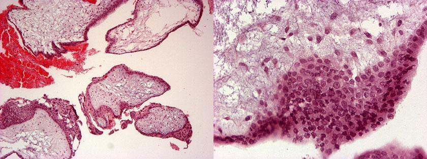 Fibromatoosi